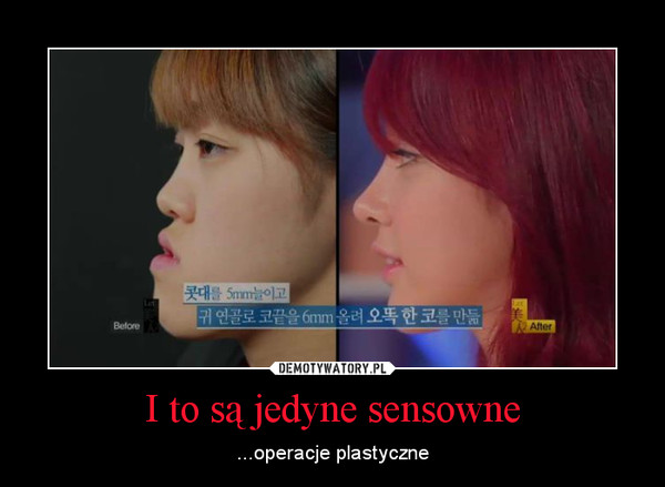 I to są jedyne sensowne – ...operacje plastyczne
