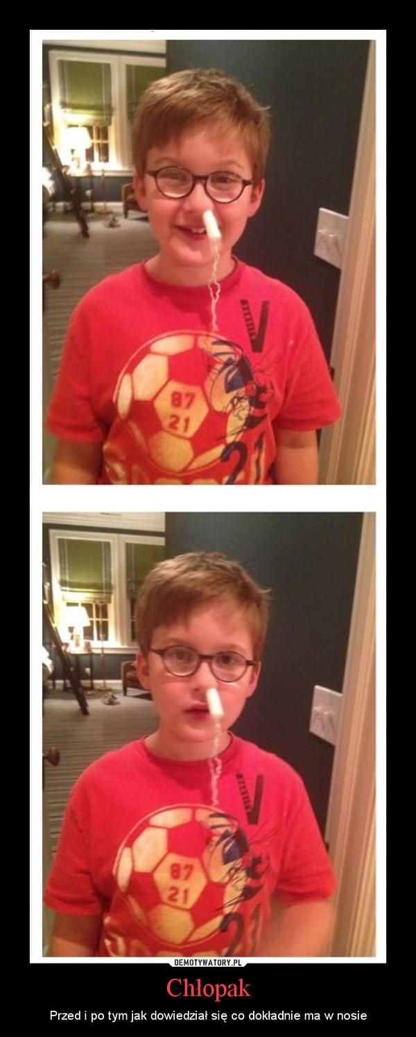 Chłopak – Przed i po tym jak dowiedział się co dokładnie ma w nosie