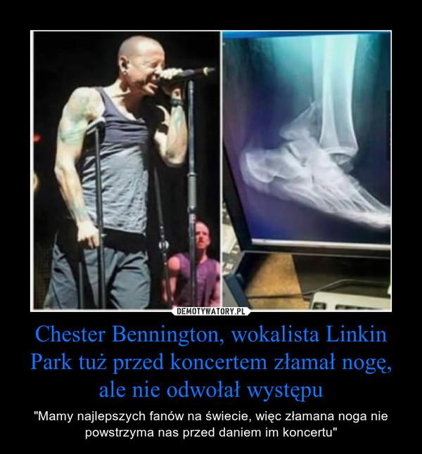 """Chester Bennington, wokalista Linkin Park tuż przed koncertem złamał nogę, ale nie odwołał występu – """"Mamy najlepszych fanów na świecie, więc złamana noga nie powstrzyma nas przed daniem im koncertu"""""""