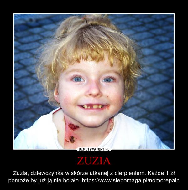 ZUZIA – Zuzia, dziewczynka w skórze utkanej z cierpieniem. Każde 1 zł pomoże by już ją nie bolało. https://www.siepomaga.pl/nomorepain