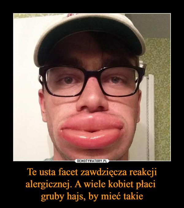 Te usta facet zawdzięcza reakcji alergicznej. A wiele kobiet płaci gruby hajs, by mieć takie –