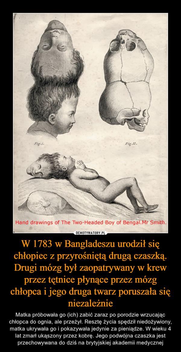 W 1783 w Bangladeszu urodził się chłopiec z przyrośniętą drugą czaszką. Drugi mózg był zaopatrywany w krew przez tętnice płynące przez mózg chłopca i jego druga twarz poruszała się niezależnie – Matka próbowała go (ich) zabić zaraz po porodzie wrzucając chłopca do ognia, ale przeżył. Resztę życia spędził niedożywiony, matka ukrywała go i pokazywała jedynie za pieniądze. W wieku 4 lat zmarł ukąszony przez kobrę. Jego podwójna czaszka jest przechowywana do dziś na brytyjskiej akademii medycznej