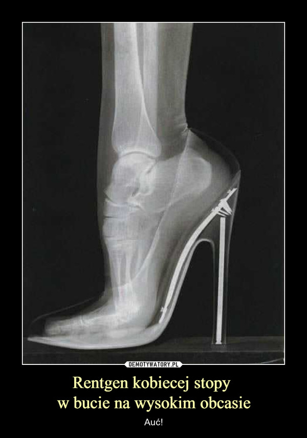 Rentgen kobiecej stopy w bucie na wysokim obcasie – Auć!