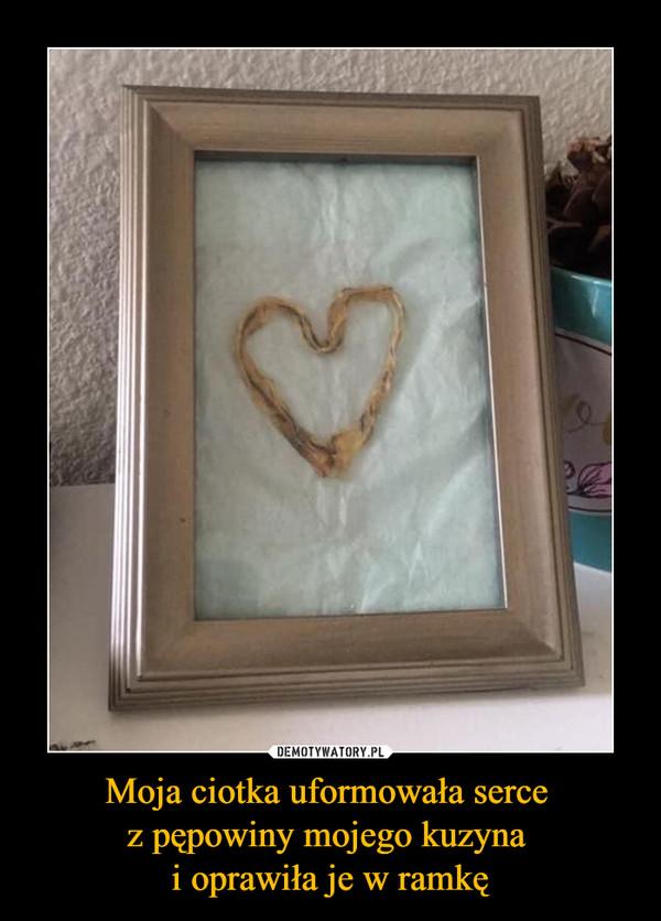 Moja ciotka uformowała serce z pępowiny mojego kuzyna i oprawiła je w ramkę –