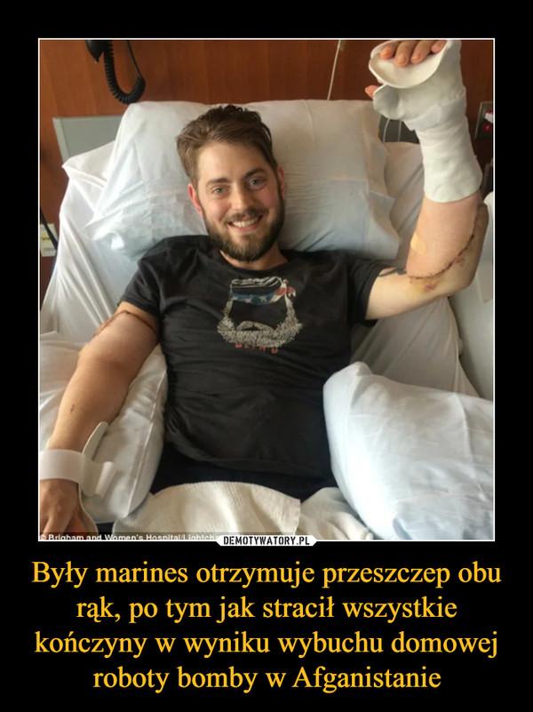 Były marines otrzymuje przeszczep obu rąk, po tym jak stracił wszystkie kończyny w wyniku wybuchu domowej roboty bomby w Afganistanie –