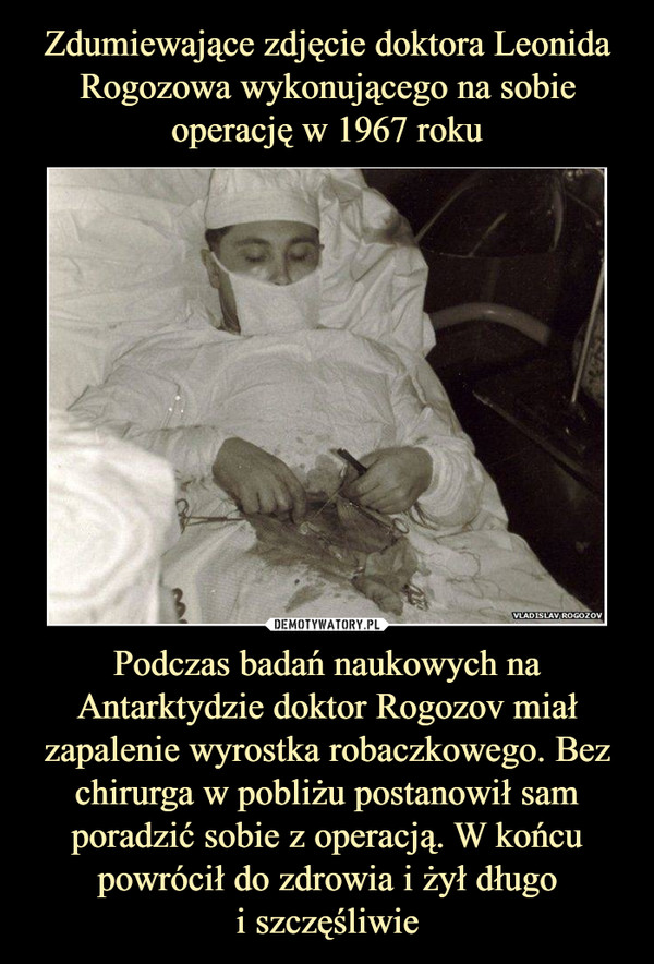 Podczas badań naukowych na Antarktydzie doktor Rogozov miał zapalenie wyrostka robaczkowego. Bez chirurga w pobliżu postanowił sam poradzić sobie z operacją. W końcu powrócił do zdrowia i żył długoi szczęśliwie –