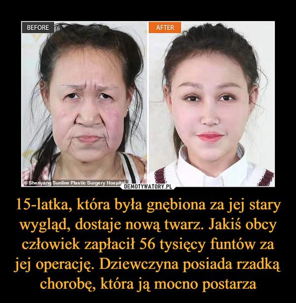 15-latka, która była gnębiona za jej stary wygląd, dostaje nową twarz. Jakiś obcy człowiek zapłacił 56 tysięcy funtów za jej operację. Dziewczyna posiada rzadką chorobę, która ją mocno postarza –