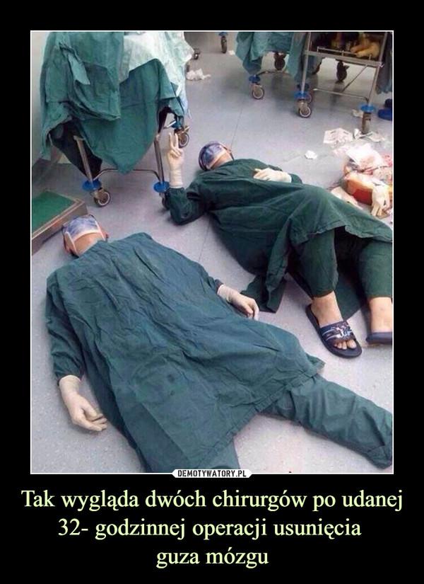 Tak wygląda dwóch chirurgów po udanej 32- godzinnej operacji usunięcia guza mózgu –