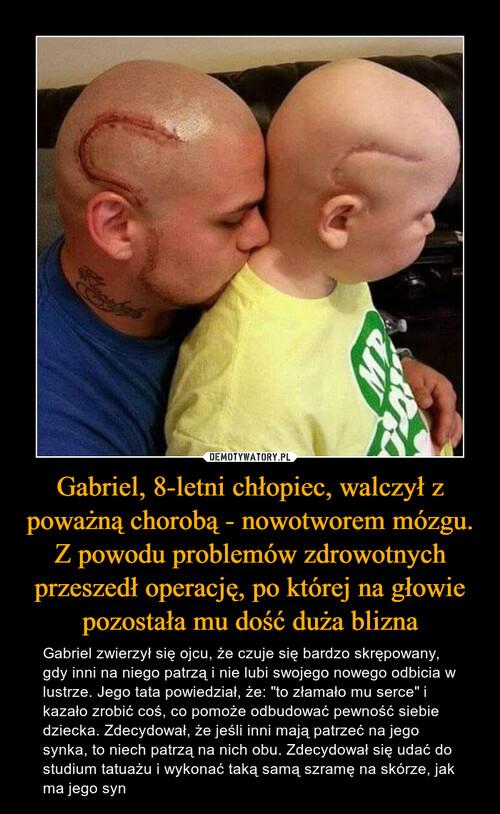 Gabriel, 8-letni chłopiec, walczył z poważną chorobą - nowotworem mózgu. Z powodu problemów zdrowotnych przeszedł operację, po której na głowie pozostała mu dość duża blizna
